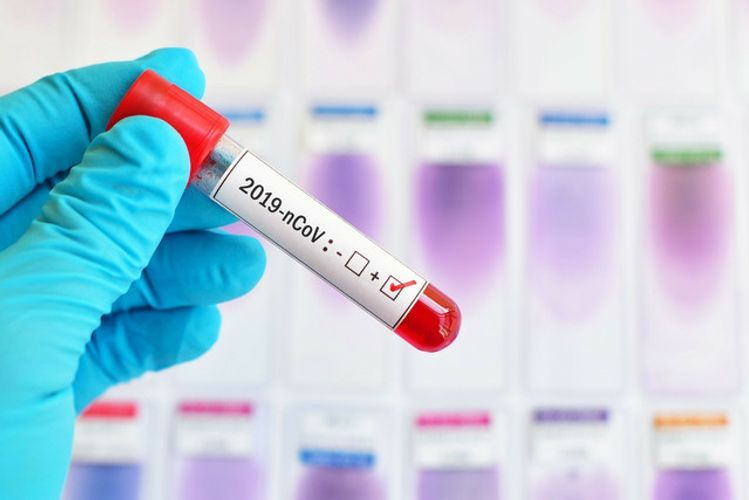 Russia to send more coronavirus test kits to CIS countries