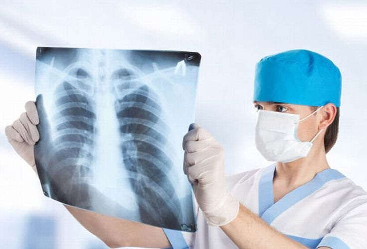 В прошлом году от пневмонии в Азербайджане умерли 678 человек