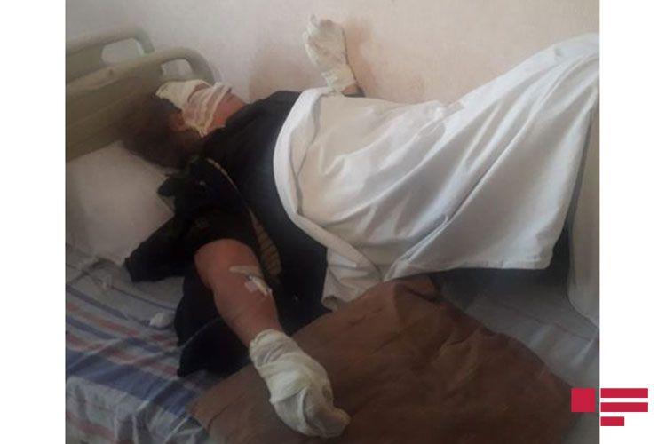 От взрыва газового баллона в Гяндже пострадали женщины - <span class=