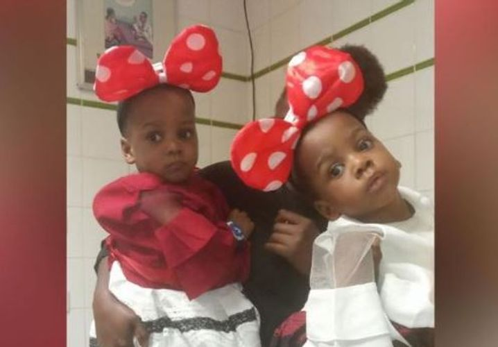 Nigerian conjoined twins successfully separated by 78-member team in Abuja - PHOTO