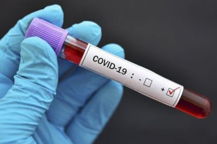 Number of confirmed coronavirus cases in Azerbaijan reach 27521 with 18967 recoveries and 349 deaths