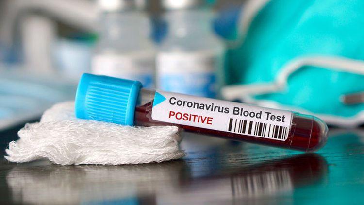 Kyrgyzstan announces 95 new cases of coronavirus, 2,657 in total