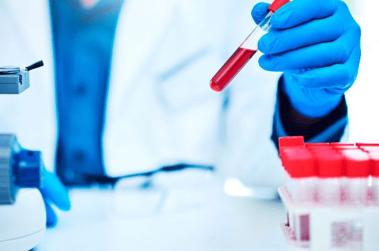 Coronavirus cases in Armenia reach 23247