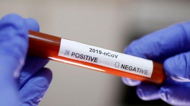 Costa Rica raises coronavirus cases to nine, including three Americans