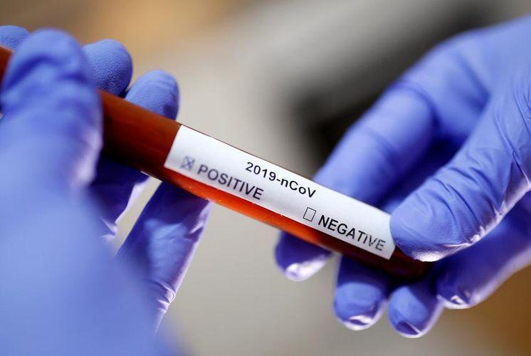 Rusiyada koronavirusa yoluxanların sayı 93-ə çatıb