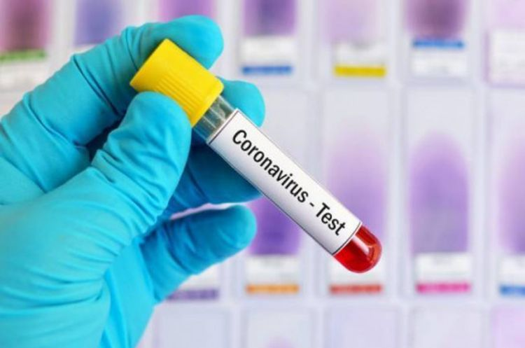 Number of coronavirus cases in Armenia grows by 322 in past 24 hours, reaching 5,928