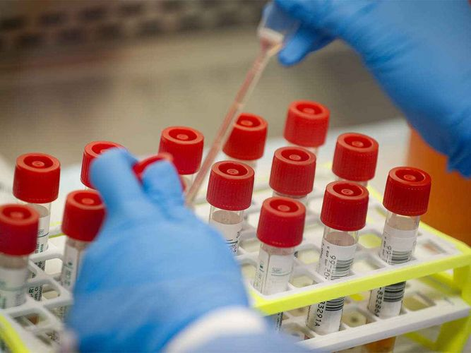 US Health Authority approves 1st self-testing kit for COVID-19