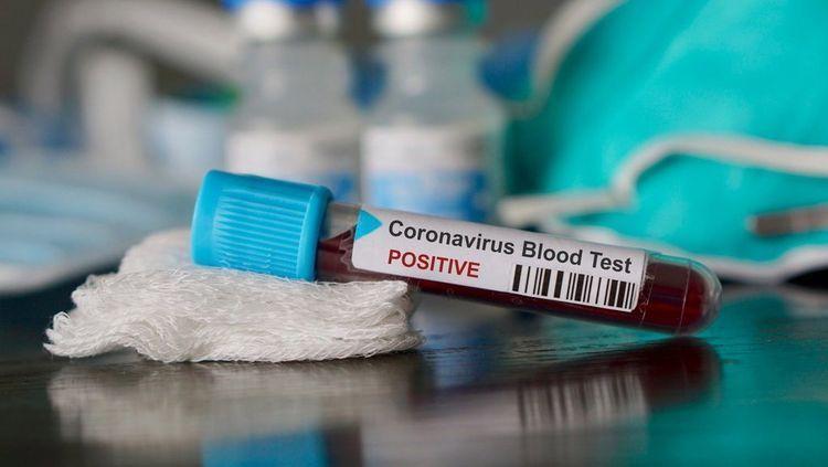 Number of confirmed coronavirus cases reaches 36,732 in Azerbaijan, 538 deaths