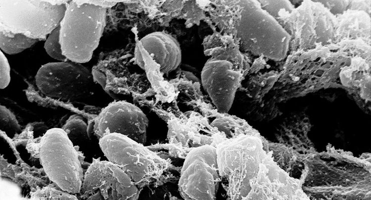 Mongolia confirms Bubonic plague case in western province, Zoonotic diseases centre says