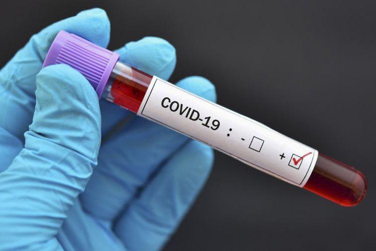 Ukraynada son sutkada COVID-19-a 3 584 yoluxma qeydə alınıb