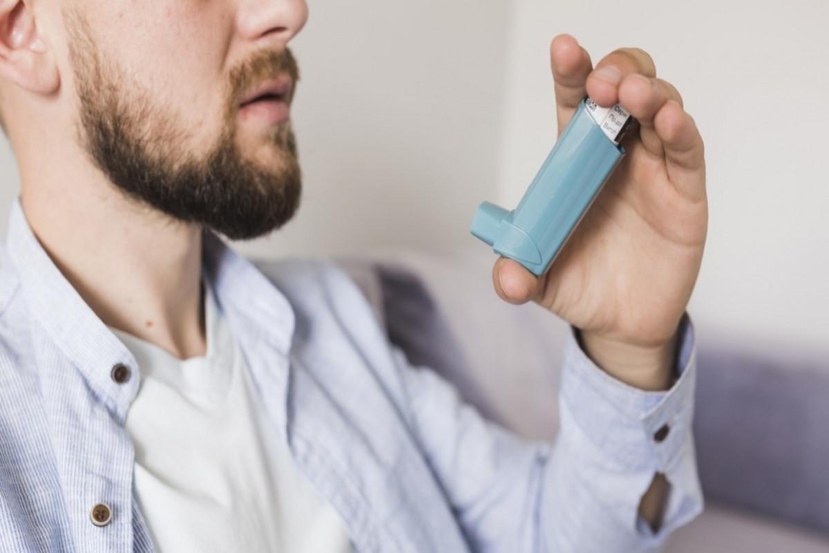 """Rusiyalı mütəxəssis: """"Allergiyası olan xəstələrin COVID-19-a yoluxma ehtimalı azdır"""""""