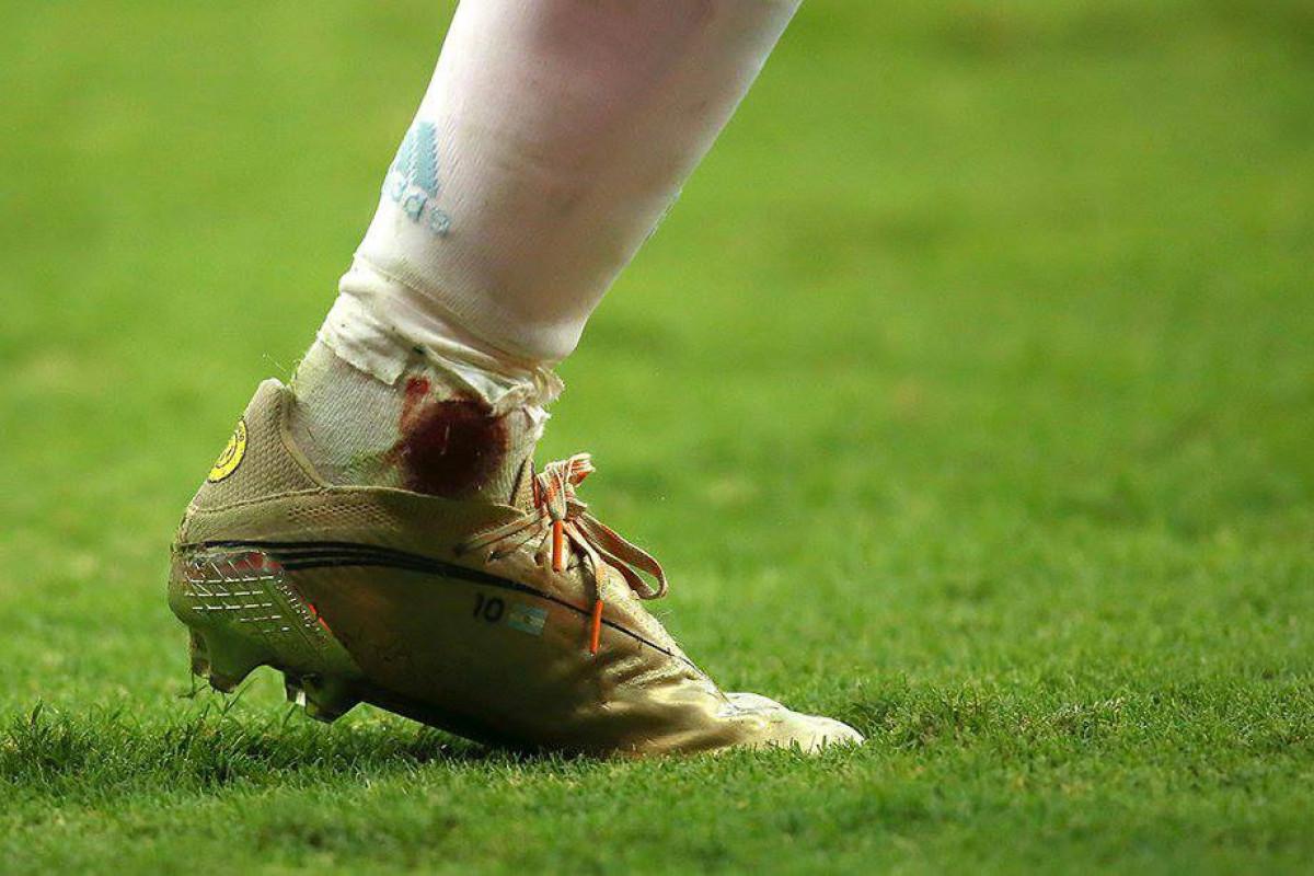 Lionel Messi Kolumbiya ilə oyunda zədələnib