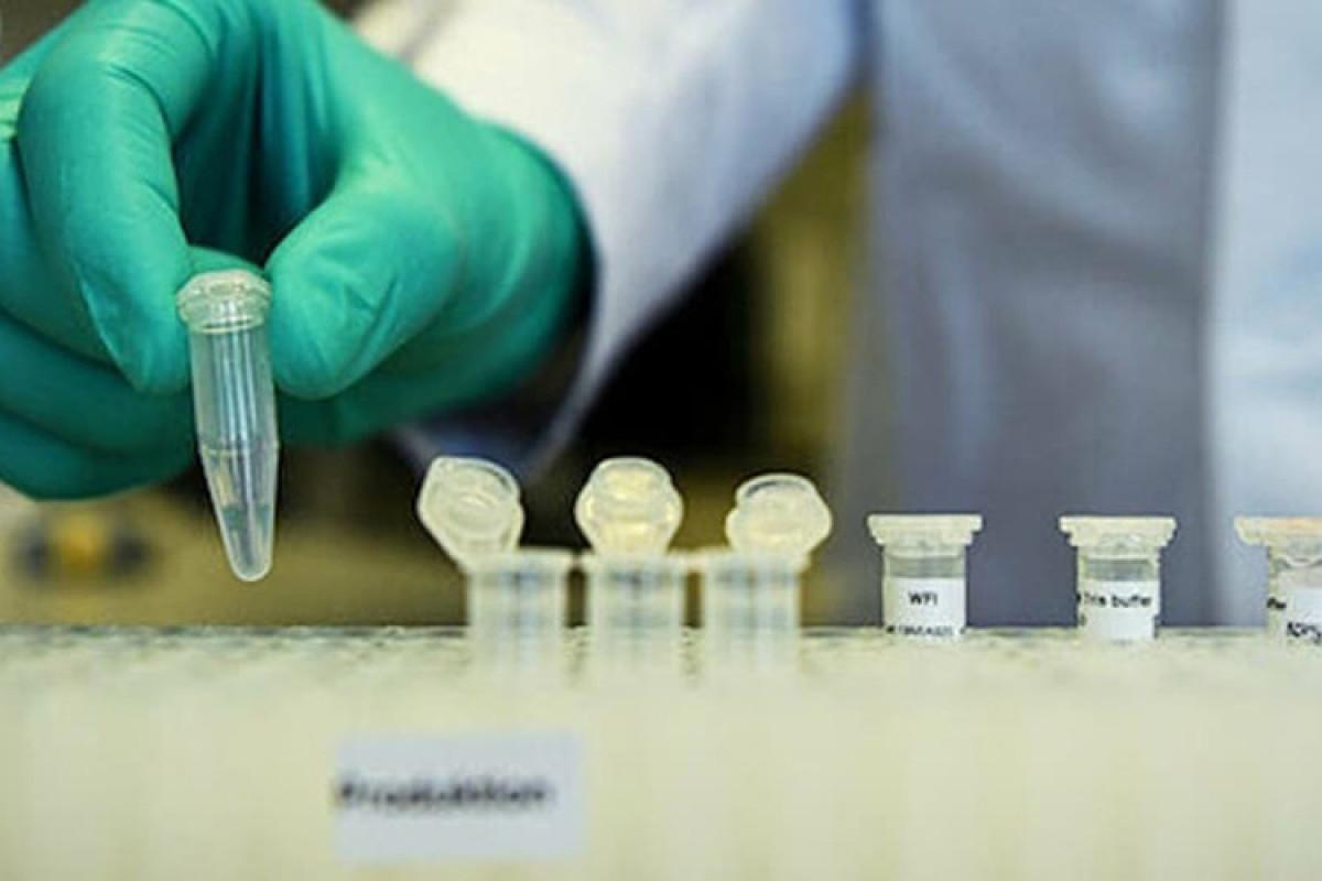 Gürcüstanda koronavirusa yoluxanların sayı 387 481 nəfərə çatıb