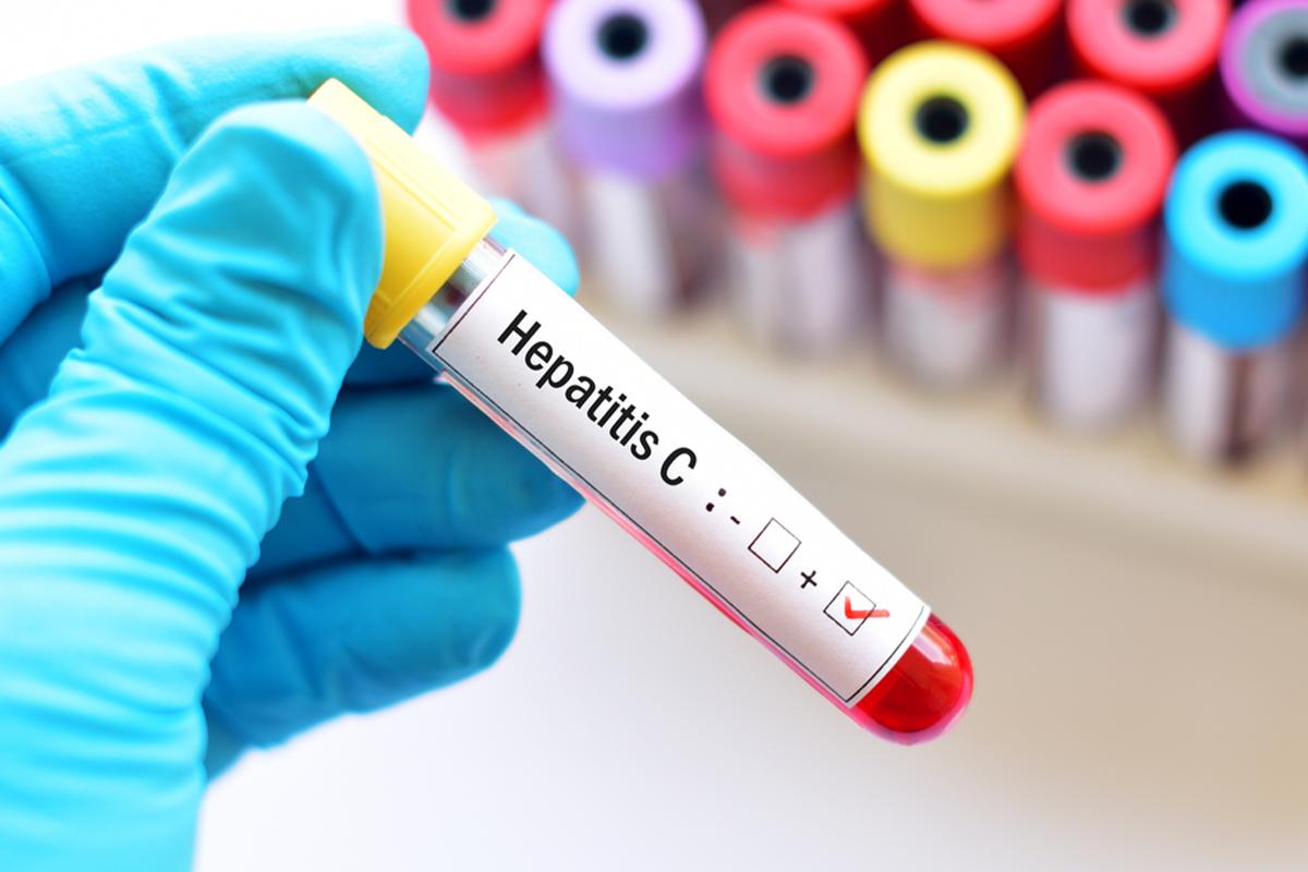 Hər il dünyada 1,4 milyon adam hepatitdən vəfat edir