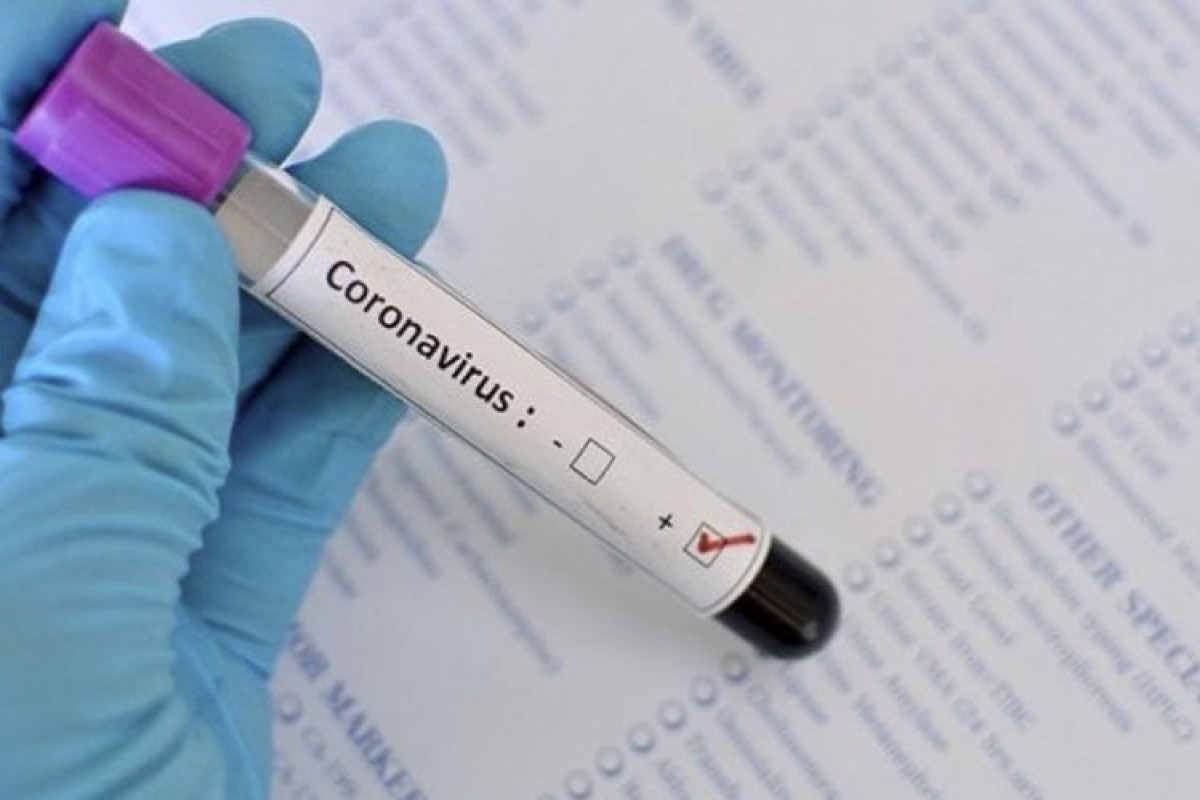 Number of confirmed coronavirus cases in Azerbaijan reach 334416, with 4929 deaths