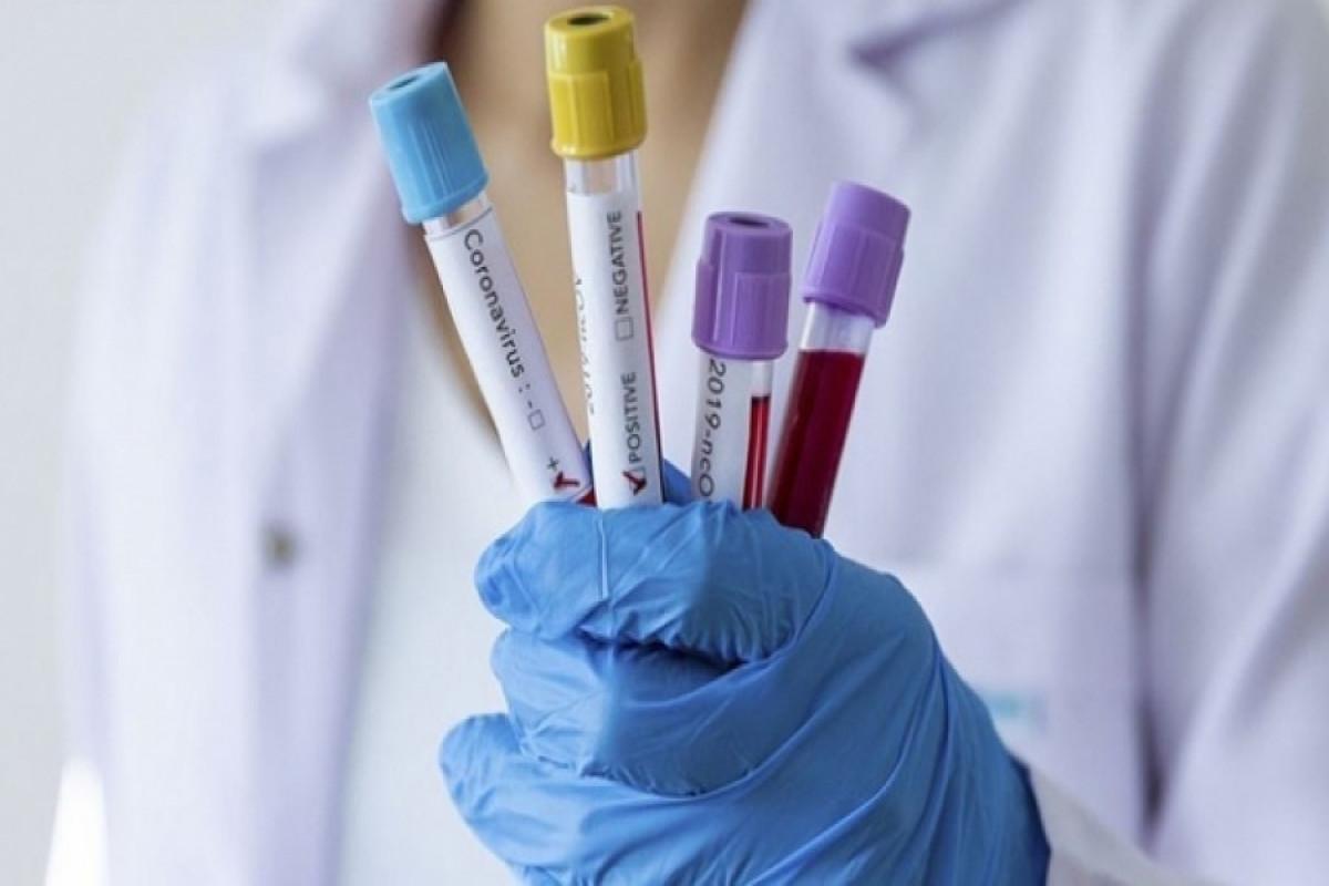 Rusiyada koronavirusdan ölənlərin sayı 123 mini ötüb