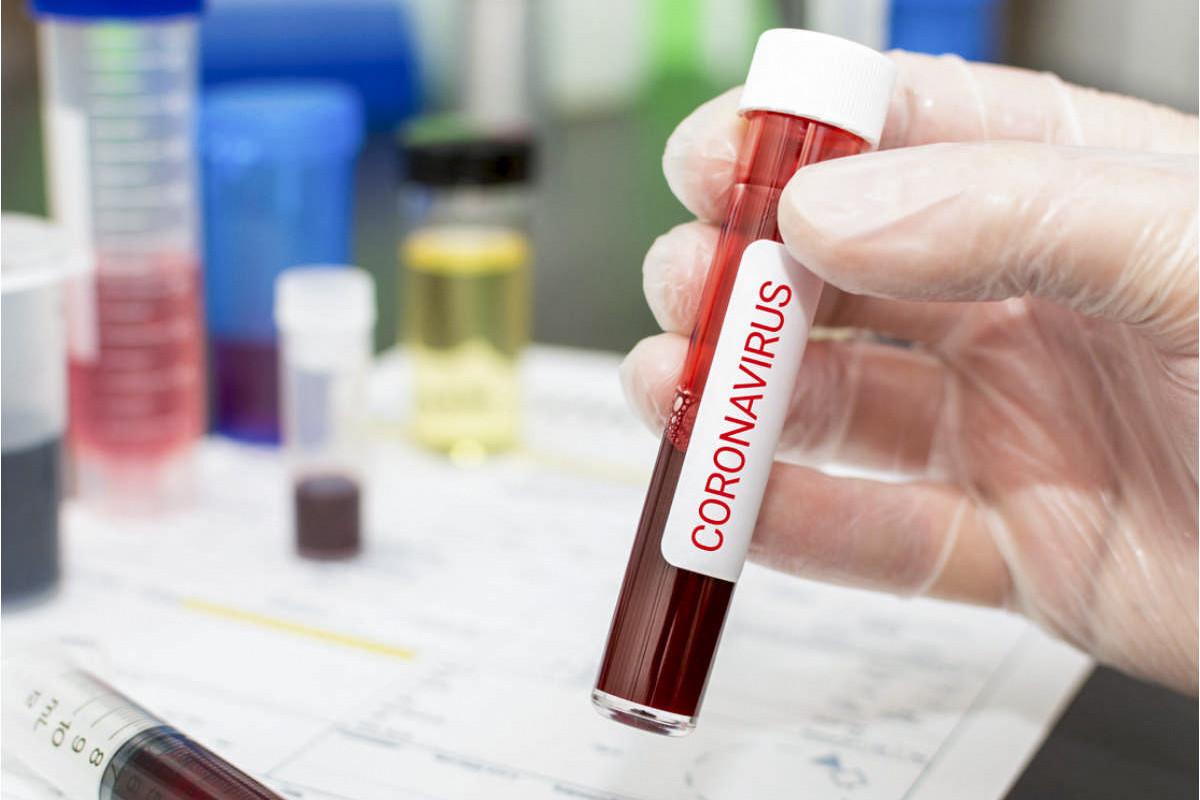В России за последние сутки COVID-19 заразились 13 510 человек