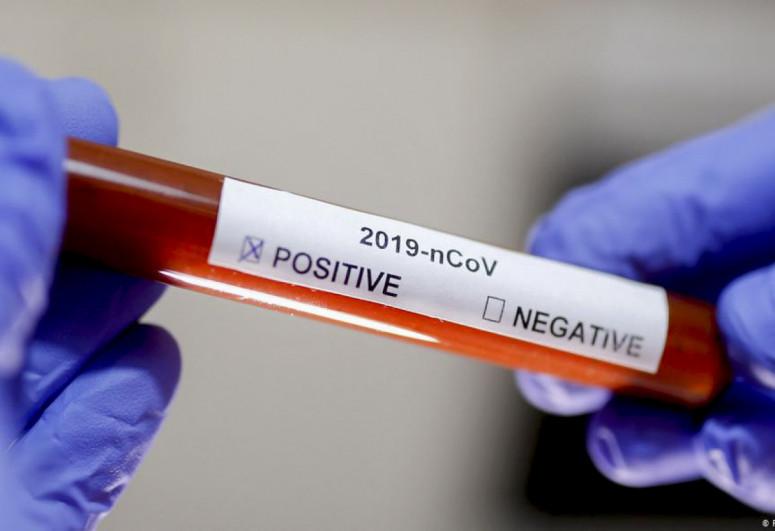 Georgia records 776 coronavirus cases over past day